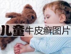 儿童脓疱性银屑病怎么治能康复