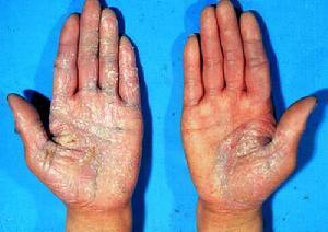 手部牛皮癣的原因是什么?