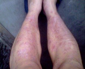 腿部牛皮癣的症状是什么呢?